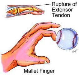 mallet-finger1